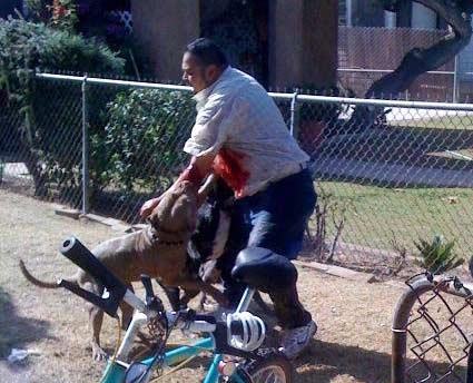 Steven Herrera, pit bull attack