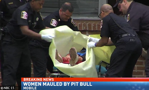 Dramatic owner attack by family pit bull in Mobile