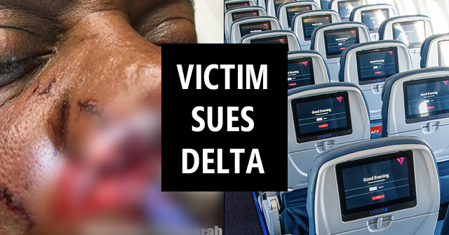 Complaint against delta - dog attack victim sues