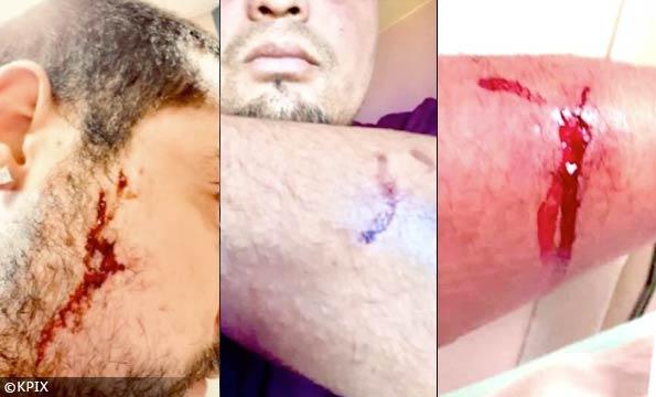 Pit bull injuries Sausalito dog attack