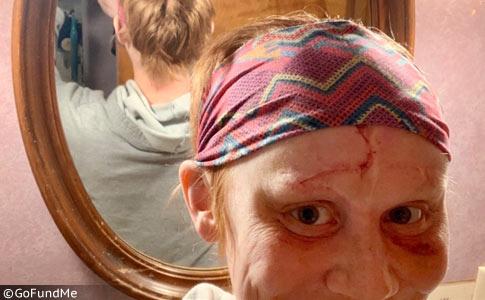 Denise Venzke - Life changing surgery