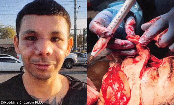 Police K-9 face attack - Carlos Balli