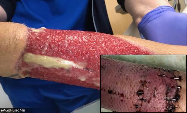 Kyle Cracolici - degloving injuries